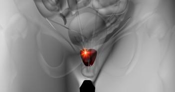 nuovo-chip-cancro-prostata