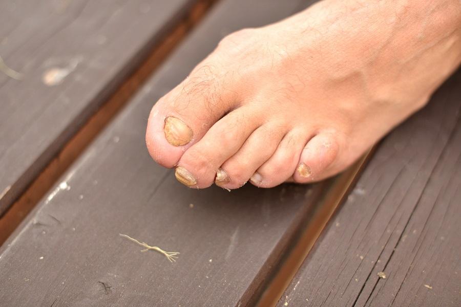 Unguenti non costosi da funghi di unghie