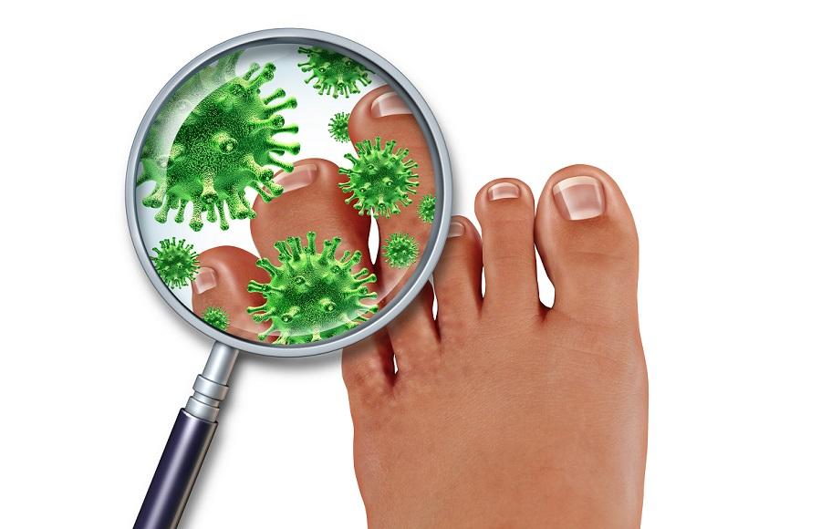 Ai primi sintomi di un fungo di piedi