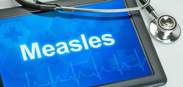 nota-iss-public-health-england-morbillo