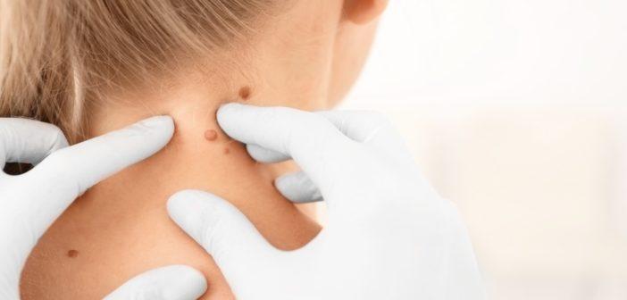 campagna-dermatoscopia-prevenzione-centro-sabatino