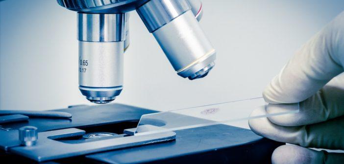 ocrelizumab-nuovo-farmaco-sclerosi-multipla